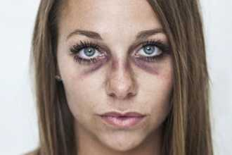 Приснились синяки на лице и на теле — правильная расшифровка