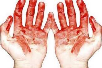 Готика или медицина: как вам приснилась кровь и к чему это